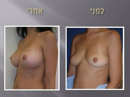 הגדלת חזה תמונות לפני ואחרי