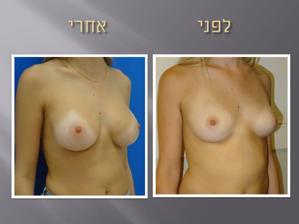 הגדלת חזה מעל השריר מראה טבעי
