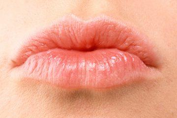 מילוי עיבוי  שפתיים